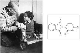 Figure 3.8. Un enfant atteint de phocomélie due au thalidomide.